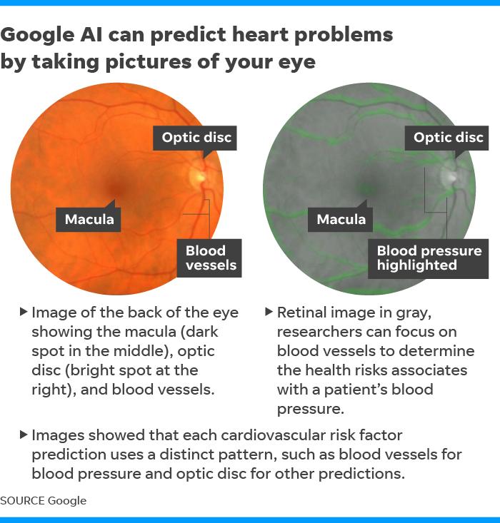 Google сможет прогнозировать сердечные заболевания, посмотрев вам в глаза [2]