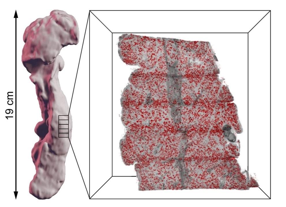 Иллюстрация того, как поджелудочная железа может быть разделена на более мелкие части, которые маркируются в зависимости от их специфических типов клеток с помощью окрашенных островков Лангерганса