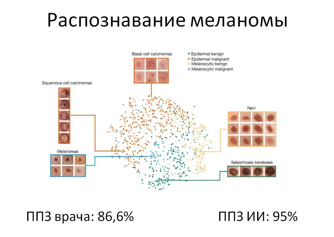 Распознавание меланомы