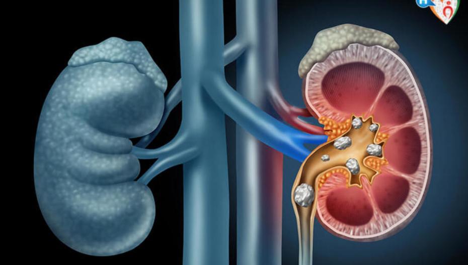 Портативное нехирургическое устройство для лечения мочекаменной болезни