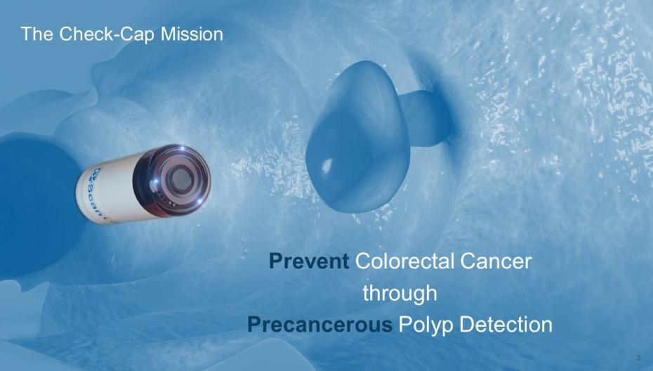 Таблетка Check-Cap как метод предварительного обследования на наличие рака кишечника