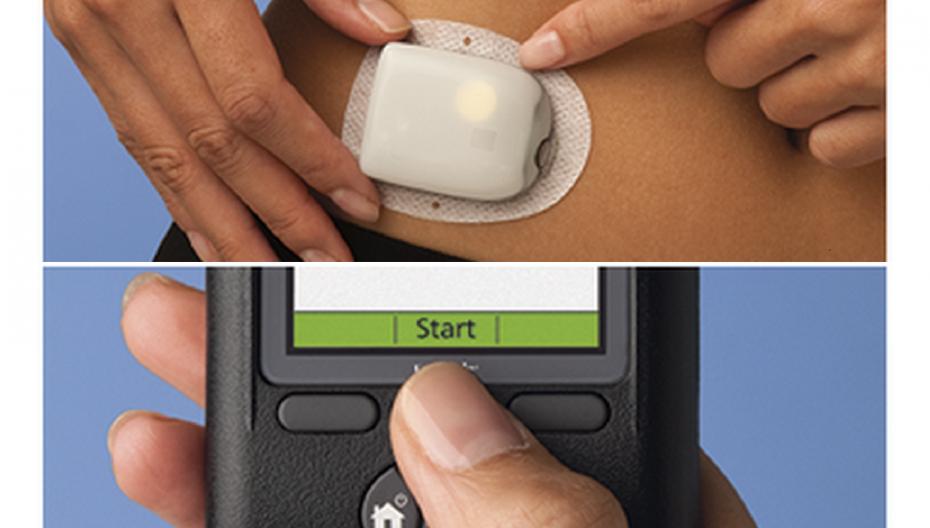 Инсулиновая помпа Insulet Omnipod теперь интегрируется с системами контроля сахара Dexcom и Abbott