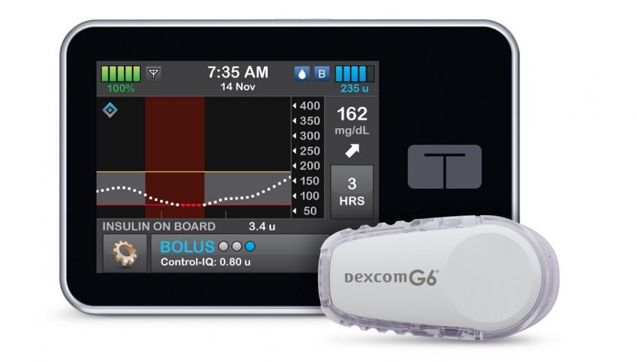 t:slim X2: Инсулиновая помпа на основе новой гибридной технологии с замкнутой обратной связью