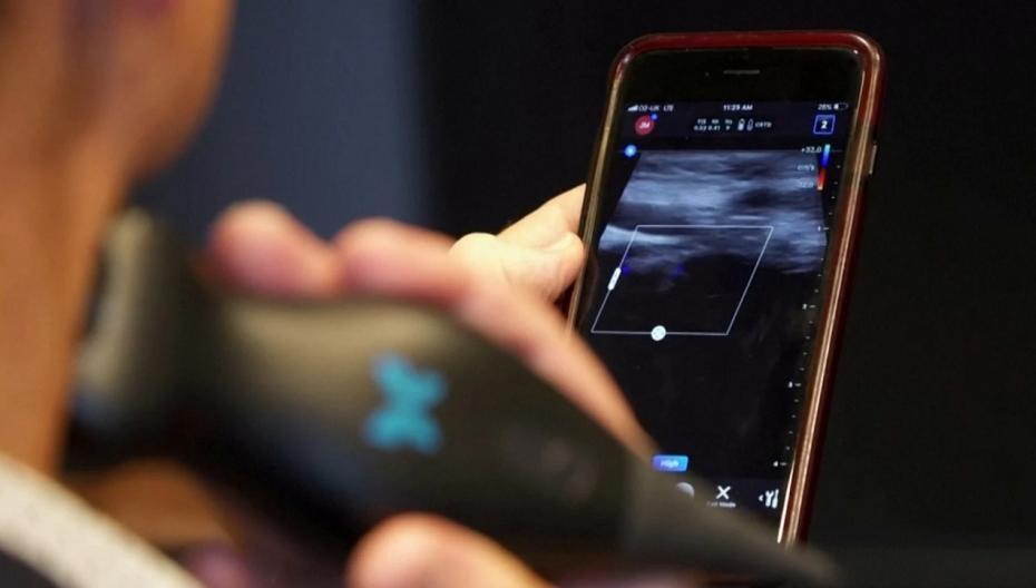 Первый в мире ультразвуковой сенсор разработан в Австралии