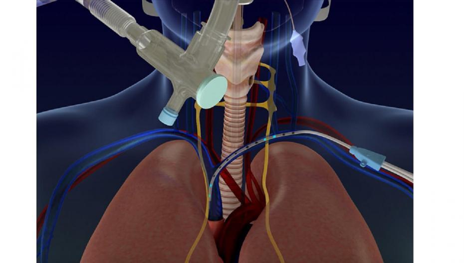 Стимулятор диафрагмы Lungpacer для больных COVID-19