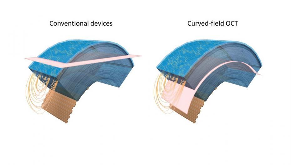Новая технология ОКТ-исследования для диагностики состояния глаз
