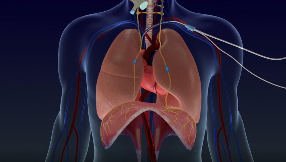 Устройство для стимулирования функции легких пациентов COVID-19 после вентиляции легких