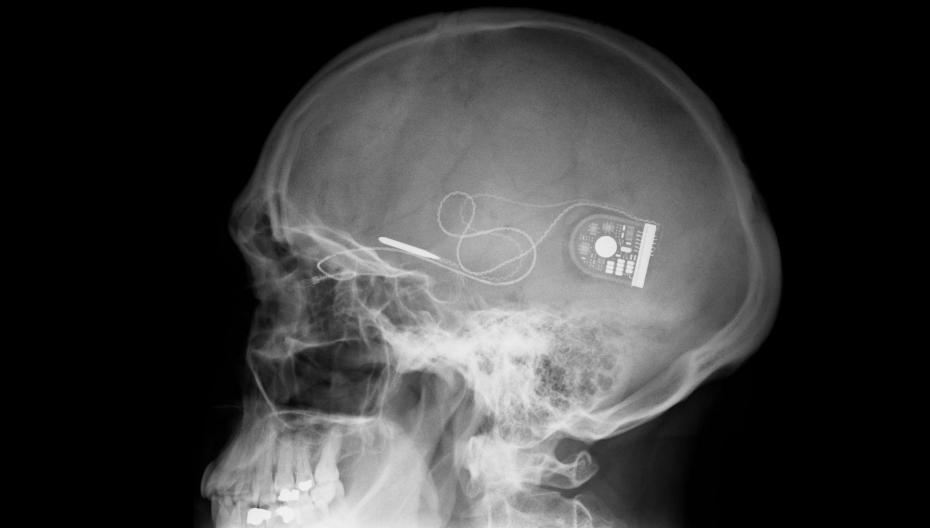 Взгляд изнутри. Медицинские имплантаты. Часть 2.