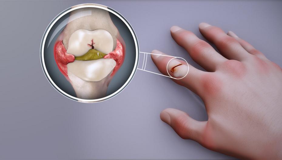 """Устройство для лечения артрита получило статус """"Прорывной технологии"""""""