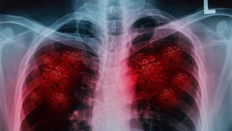 Разработан алгоритм, который способен точно определить инфекцию COVID-19, а также отличать ее от гриппа