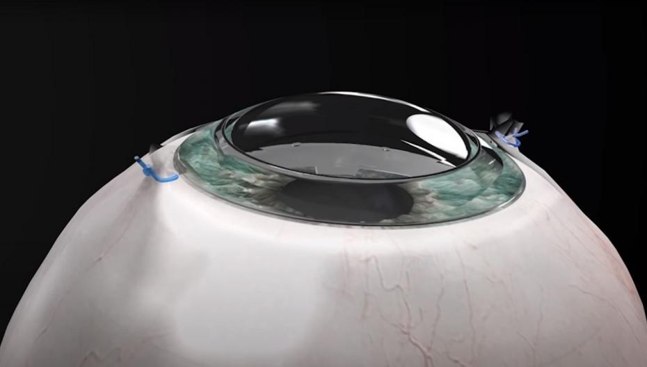 Первый пациент получил искусственную роговицу и смог видеть