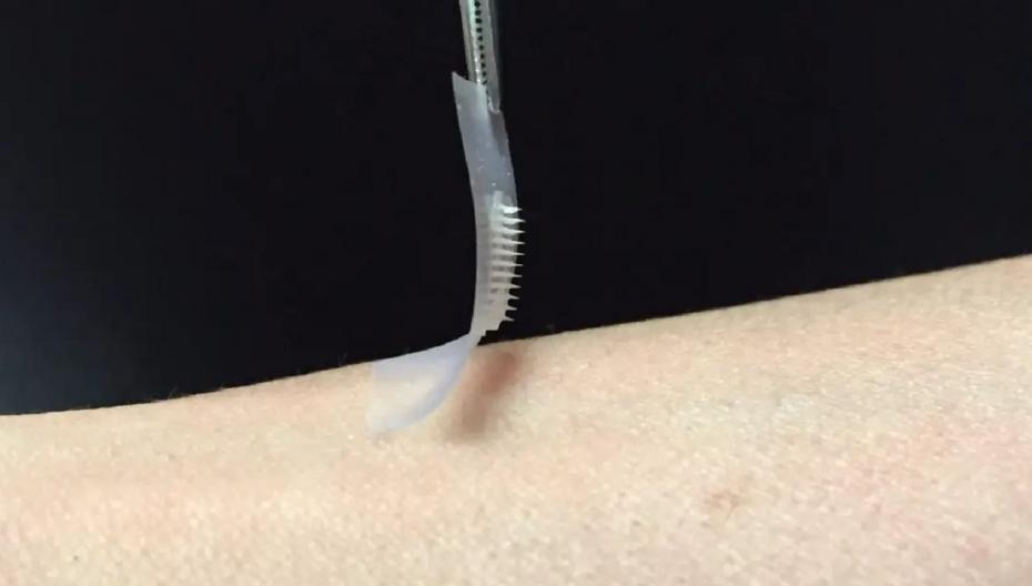 Патч с флуоресцентными нанометками обнаруживает антитела в коже