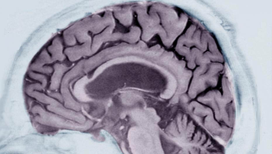 Определить вероятность Альцгеймера, читая записи пациента