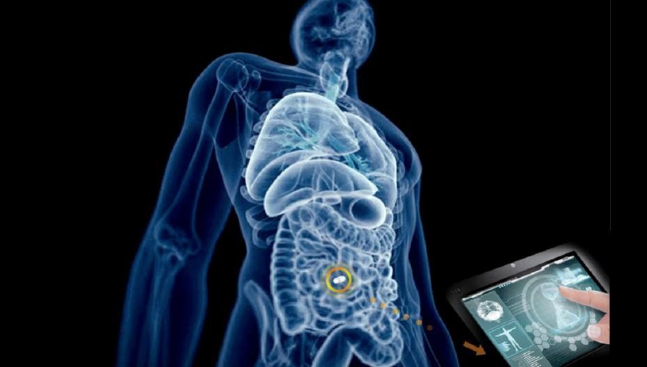 Датчик давления в брюшной полости помогает предотвратить отказ органов