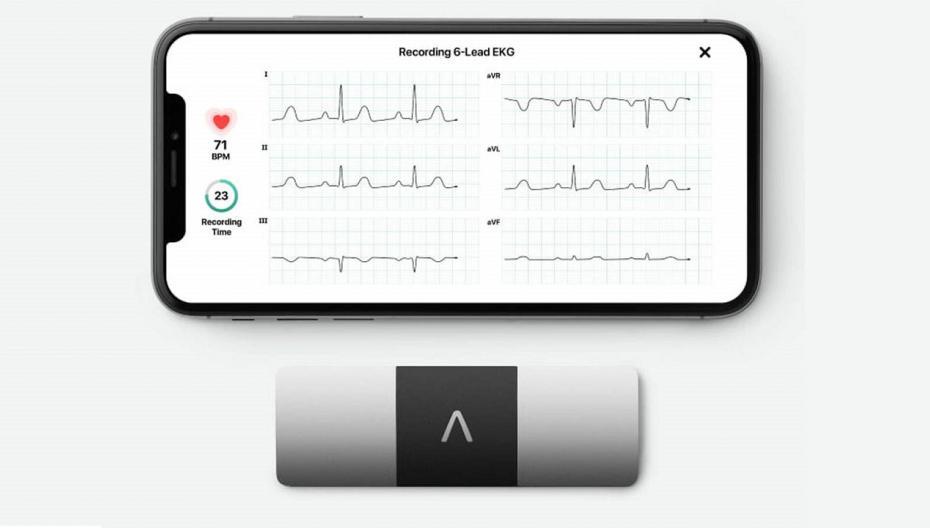 AliveCor разрабатывает неинвазивный калийный монитор