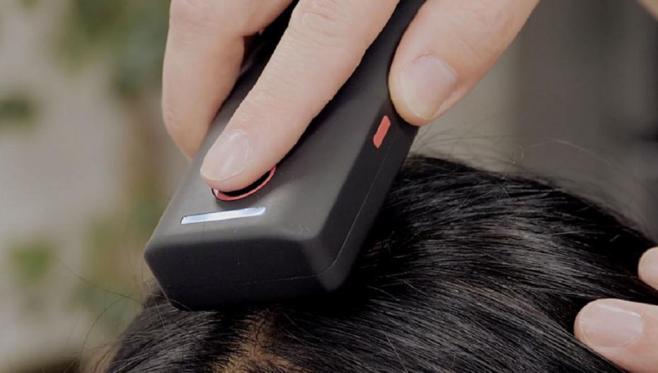 Сканер кожи головы помогает в домашних условиях справиться с выпадением волос