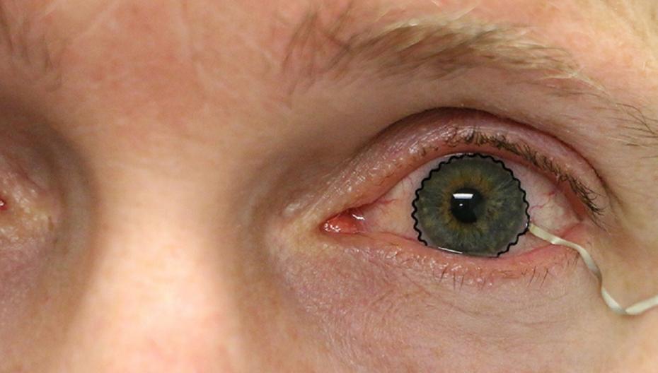 Диагностировать и контролировать глазные заболевания с помощью контактных линз