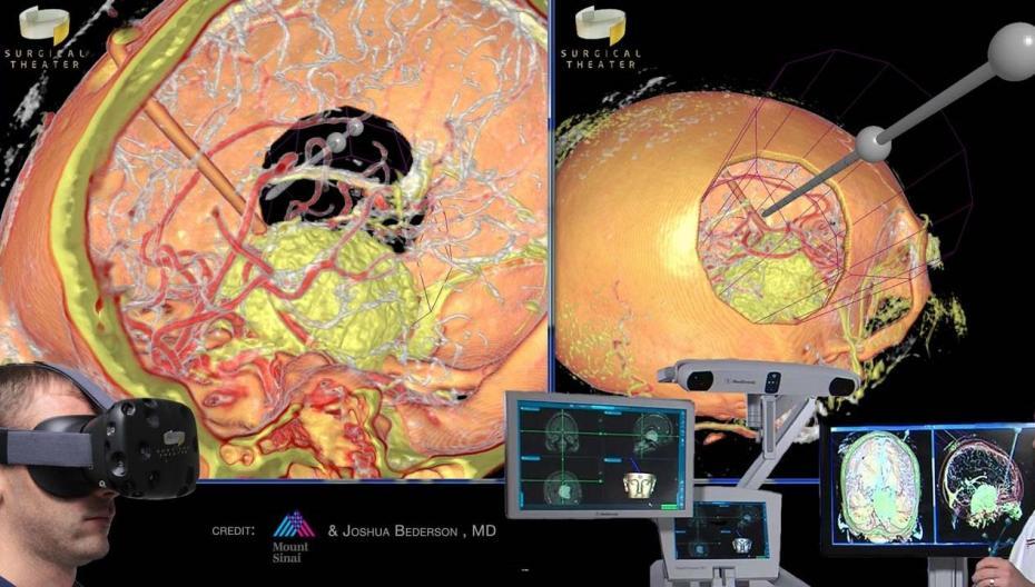 """Flight Simulator"" для хирургии головного мозга"