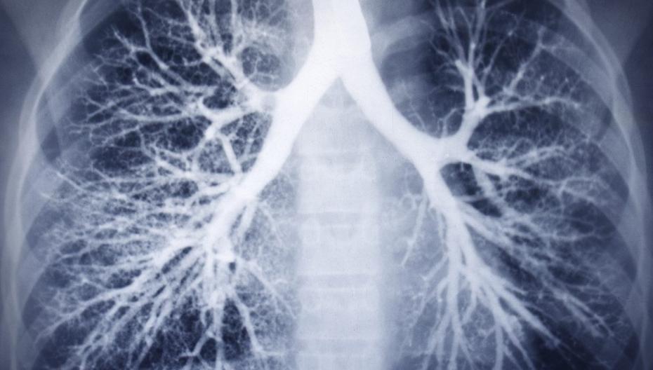 Pulsehaler: аппарат для открытия дыхательных путей пациентов с муковисцидозом и КОВИД-19 выходит на рынок