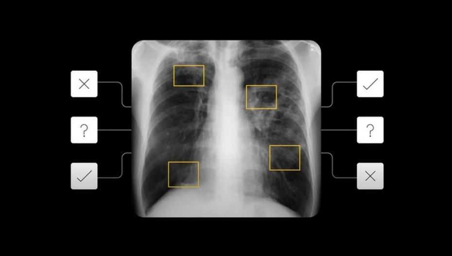 Google создает AI-систему для диагностики туберкулеза