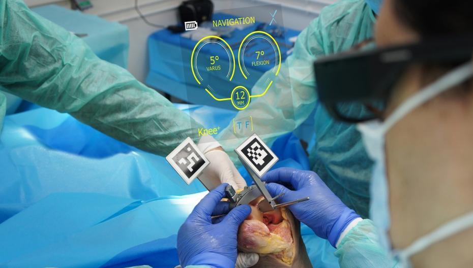 Очки дополненной реальности для операции по замене коленного сустава