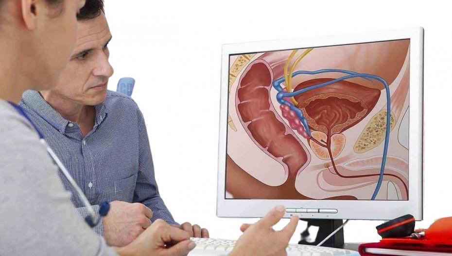 Локализованная терапия рака предстательной железы