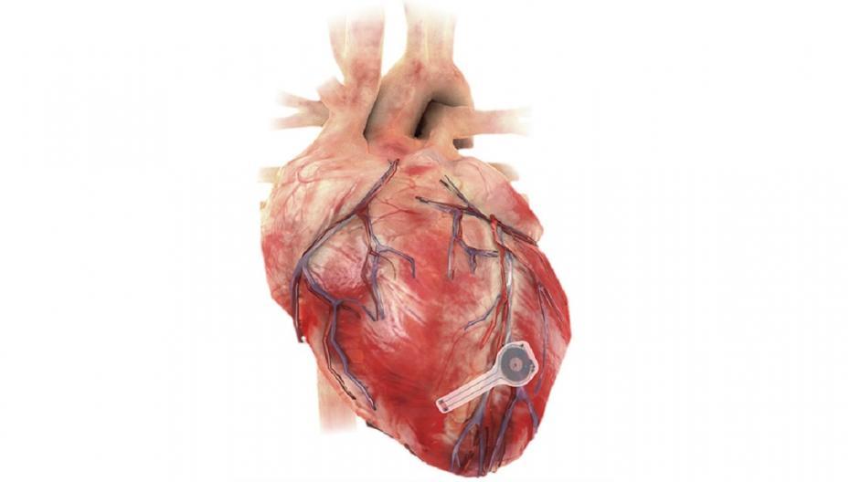Беспроводной кардиостимулятор, который растворяется в теле, когда перестает быть нужным