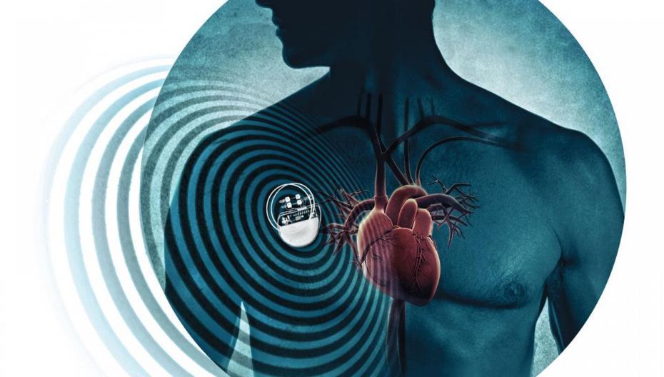 Энергия тела как источник питания для кардиостимуляторов и многого другого