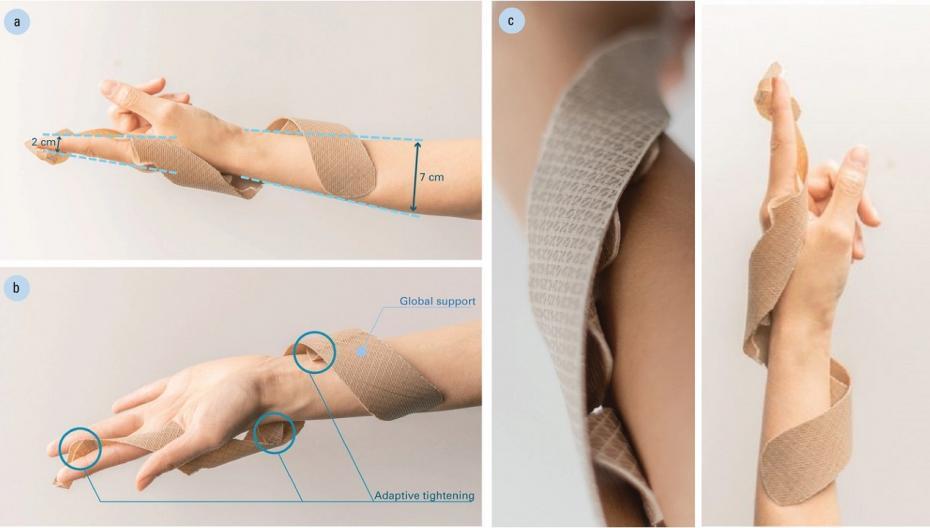 Лучезапястная шина, которая самостоятельно адаптируется к анатомии пациента