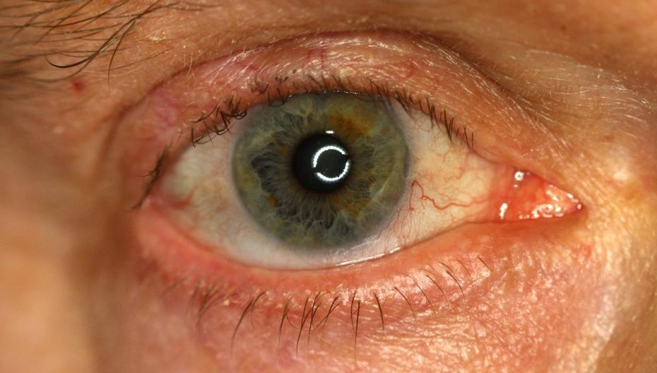 Роботизированный сканер глаз для диагностики заболеваний зрения