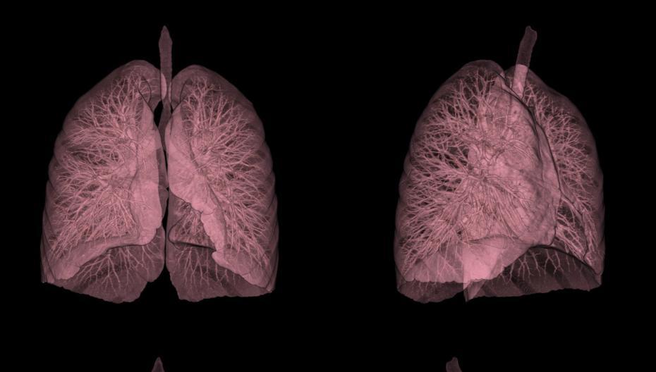 Диагностировать рак легких на год раньше