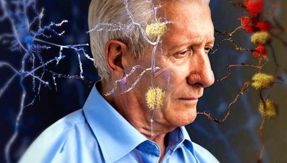 Сканирование мозга поможет определить, когда у вас проявятся симптомы деменции