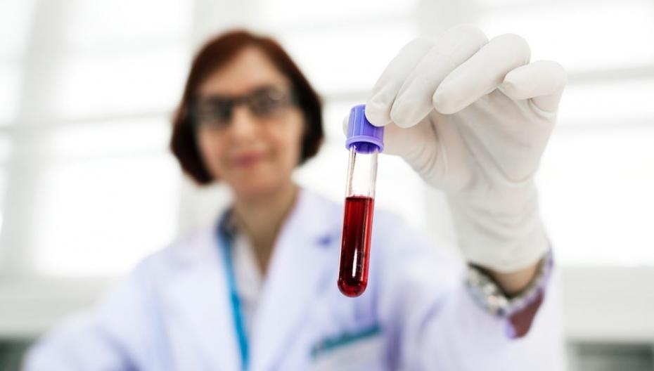 IBM научилась обнаруживать признаки Альцгеймера по анализу крови