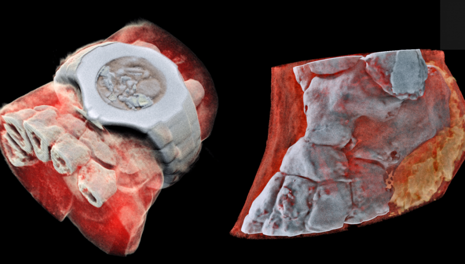Новый тип рентгеновского сканера поражает воображение