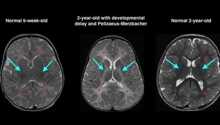 Система машинного обучения для расшифровки сканов мозга в педиатрии от GE