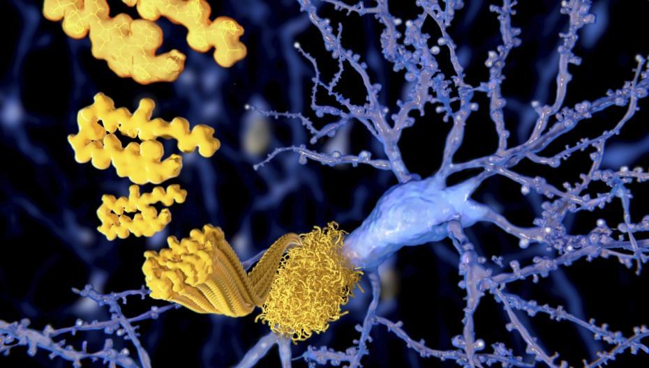 Новые методы диагностики болезни Альцгеймера