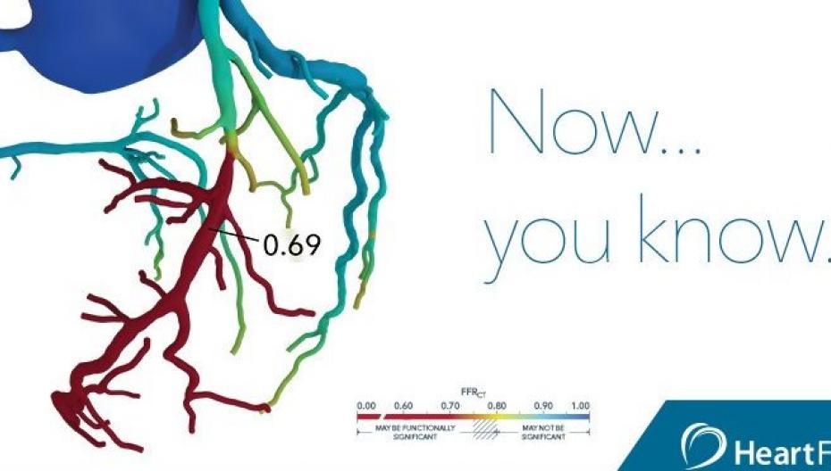 3D-модель коронарных артерий для анализа влияния закупорки сосуда