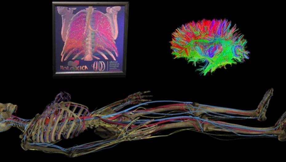 Голографический дисплей для интерактивной визуализации медицинских изображений