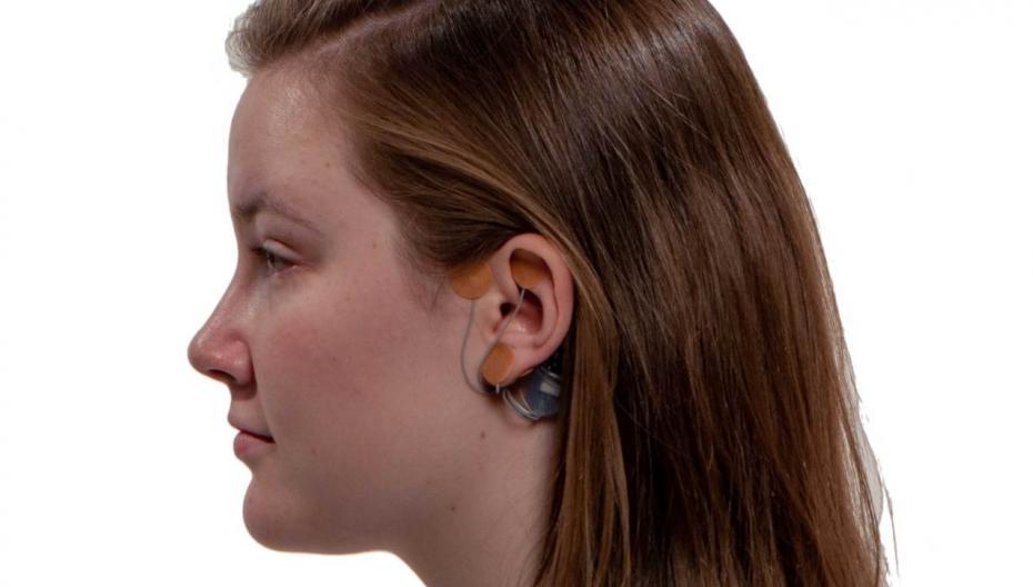 IB-Stim: одноразовый электростимулятор для лечения боли в животе у подростков