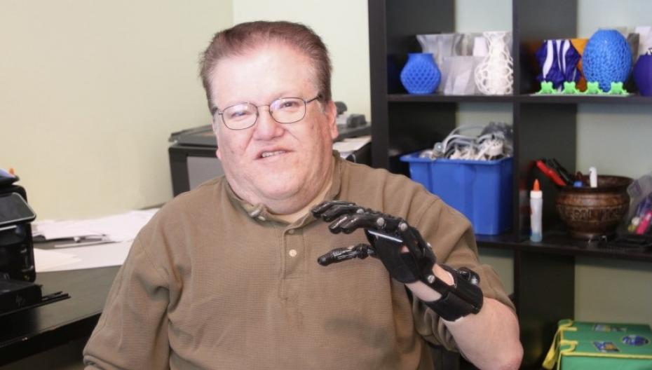 Миоэлектрические протезы могут быть и не очень дорогими