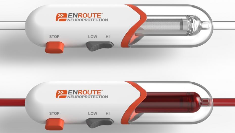 Миниатюрное устройство, защищающее от инсульта