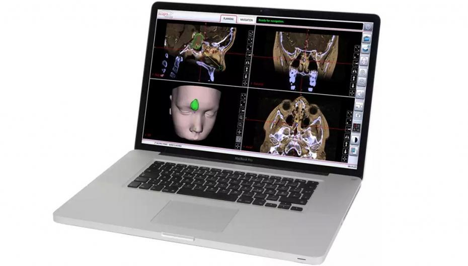 Компьютерная система помогает хирургам при отоларингологических операциях