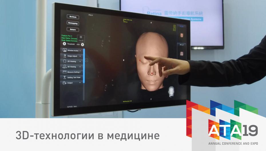 3D-технологии в медицине