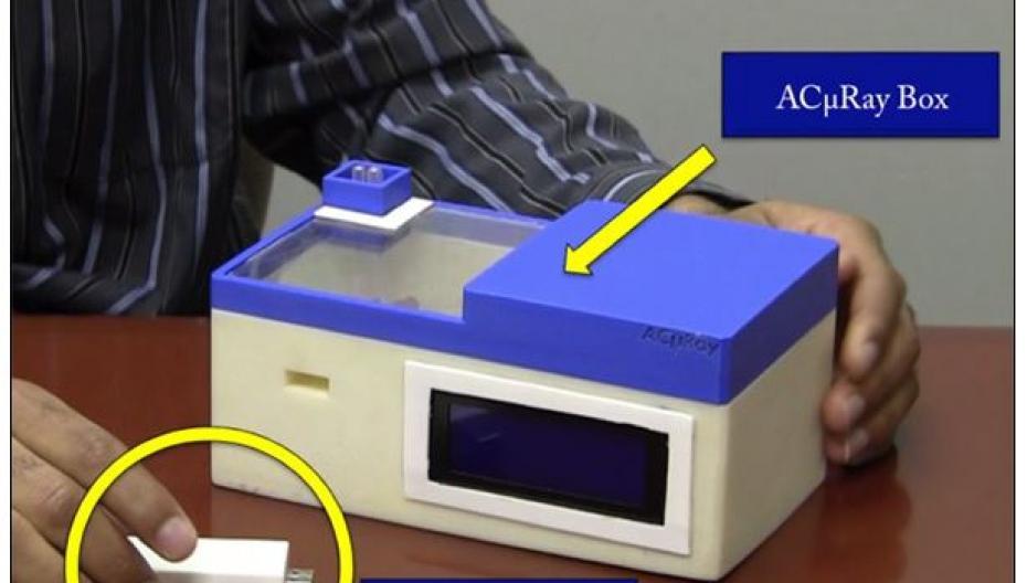 AcµRay использует акустику для обнаружения биомаркеров болезней