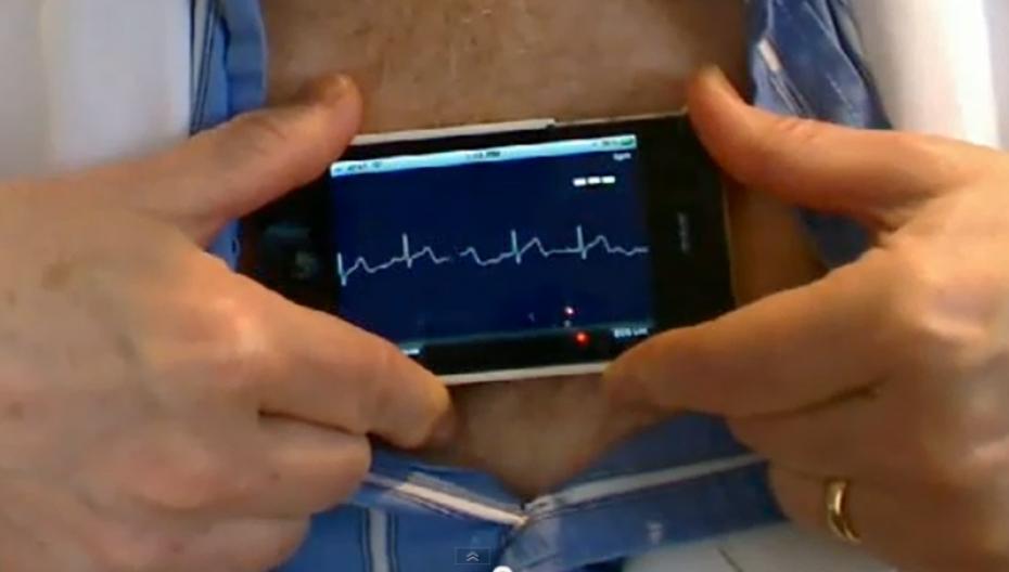 AliveCor разрабатывает очередной кардиологический инструмент на базе искусственного интеллекта