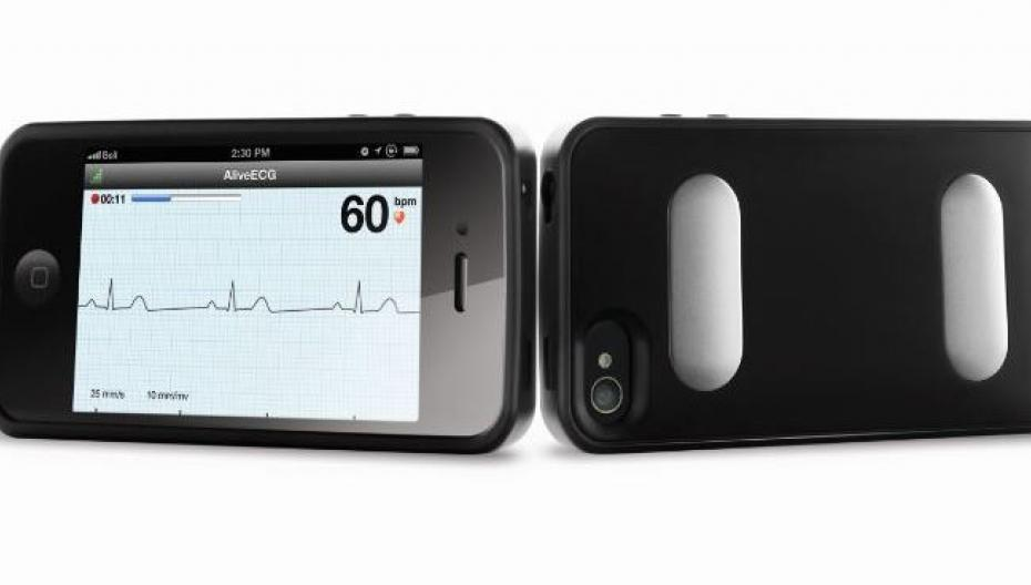 """AliveCor разработала """"революционную технологию"""" контроля здоровья"""