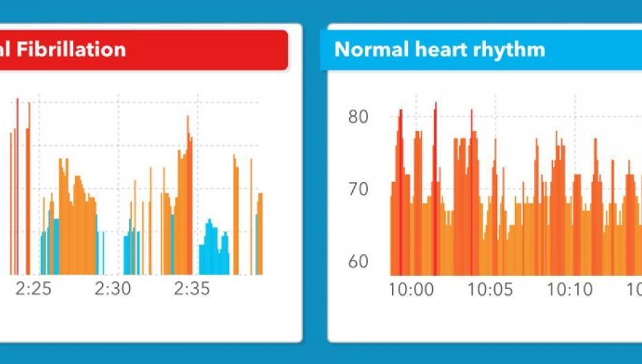 Apple Watch как детектор нарушений сердечного ритма. Точность - 97%