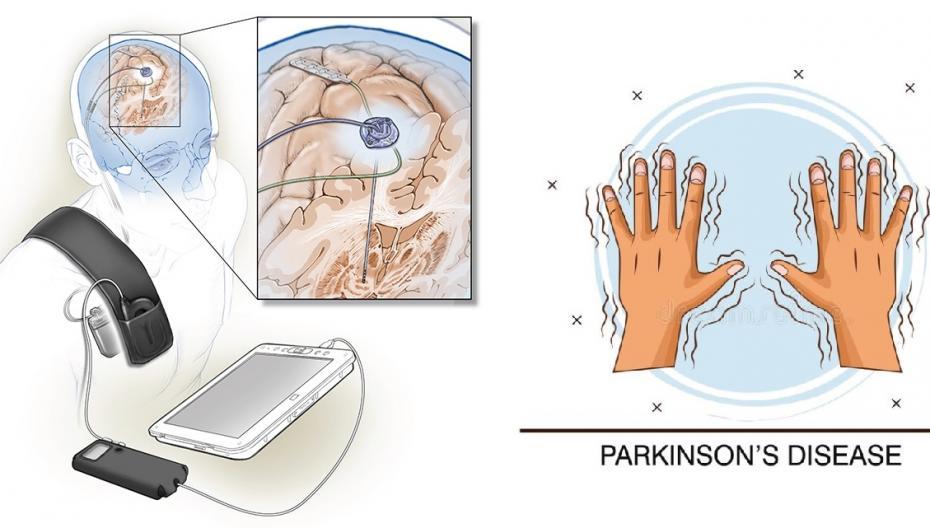Система стимуляции мозга при болезни Паркинсона подстраивается под нужды пациента