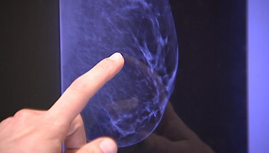 Решение МТИ на базе AI может предсказать рак груди за 5 лет до заболевания