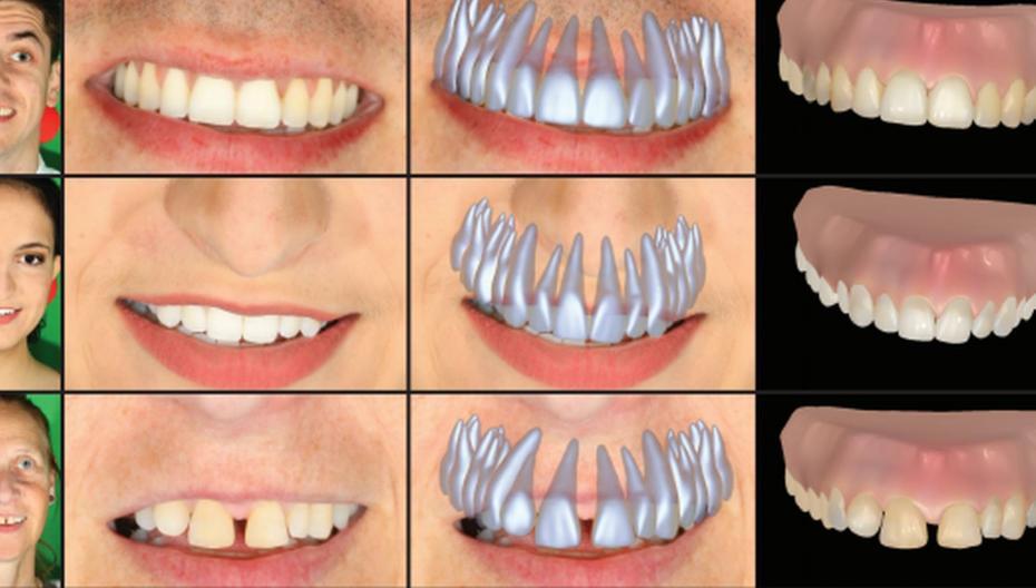 Слепок зубов по простой фотографии